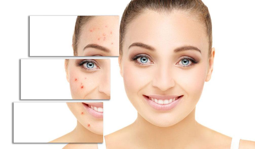 Traitement laser des cicatrices d'acné au Val d'Europe - Centre Laser & Esthétique Val d'Europe à Serris 77